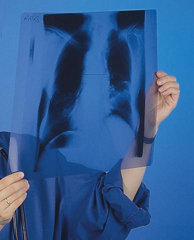 """Gerne wird auch bei """"Schnupfen"""" mal schnell ein Röntgenbild erstellt."""